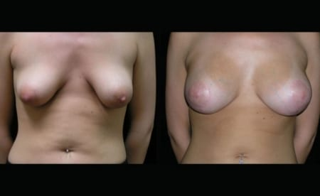 Breast Implants Before and After Photos Annapolis