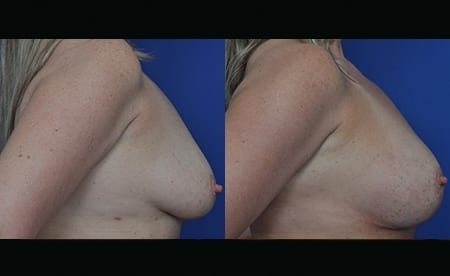 breast-implant-jan2019-before-after-lateral
