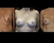 Annapolis Breast Reconstruction Surgery