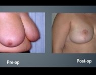 Breast Reduction Surgery Before & After Photos Annapolis