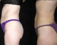 Liposuction Before and After Photos Annapolis
