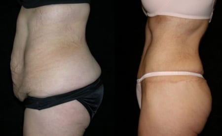 Tummy Tuck Before and After Photos Annapolis