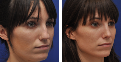 annapolis-rhinoplasty-before-and-after-photos