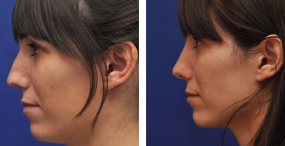 annapolis-rhinoplasty-before-and-after photos