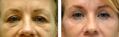 Blepharoplasty Before & After Photos Annapolis