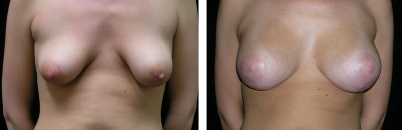 Leaking breast implant arnold maryland