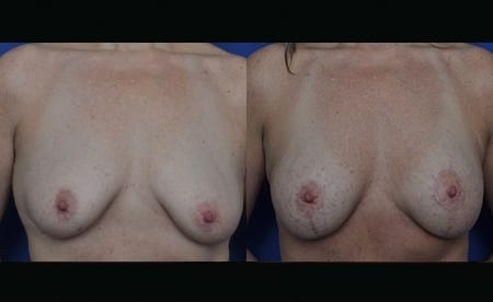 breast-implant-jan2019-1-before-after