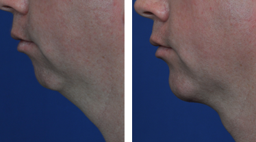 chin-implant-neck-liposuction before and after photos