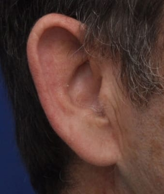 Annapolis Earlobe Repair Before Photo