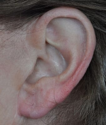 Annapolis Earlobe Repair After Photo