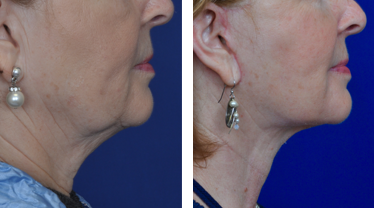Facelift Before & After Photos Annapolis