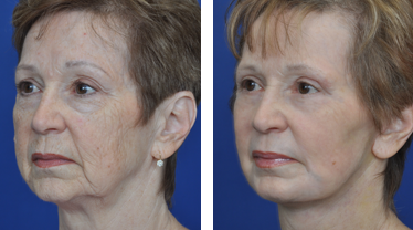 annapolis-facial-plastic-surgery-before-and-after-JK-Side