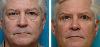 annapolis blepharoplasty before and after photos