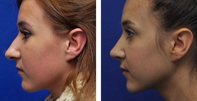annapolis rhinoplasty before and after photos