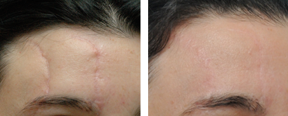 annapolis scar removal before and after photos