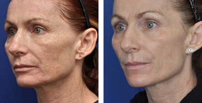 annapolis microlaser peel before and after photos