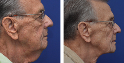annapolis neck lift before and after photos