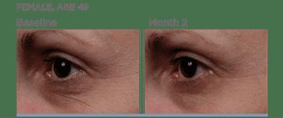 SkinMedica-TNS-Serum-Before-After-photos