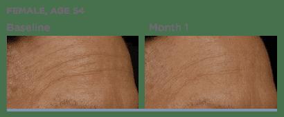 SkinMedica-TNS-Serum-Before-After photos