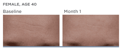 SkinMedica-TNS-Serum-Before-After photos