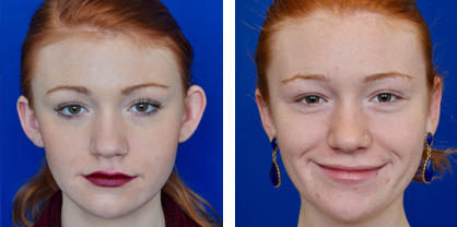Annapolis otoplasty before and after photos