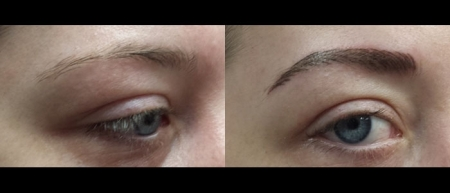 brows4b