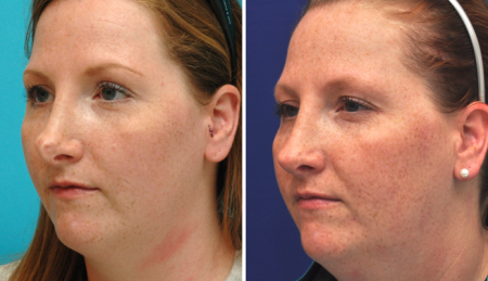 Before and after Rhinoplasty Annapolis
