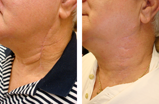 scar removal before and after photos Annapolis