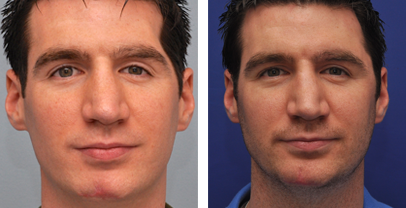 Fat Transfer to Face Before & After