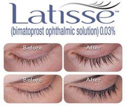 Latisse-Logo-300x251