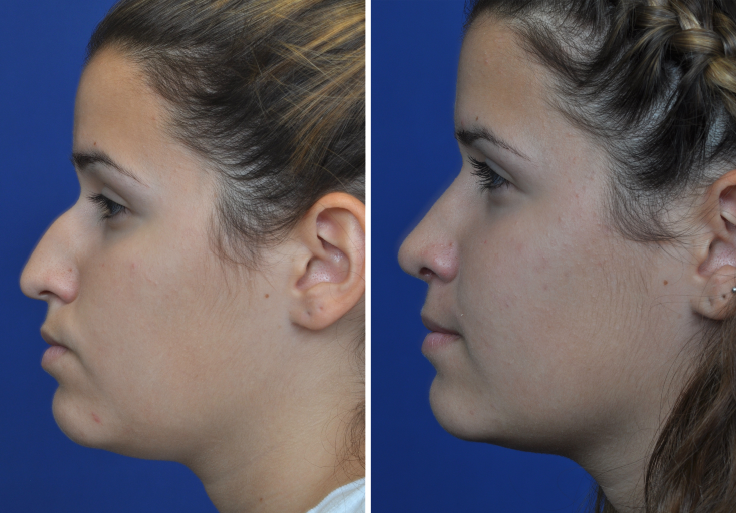 before and after Septorhinoplasty in Annapolis