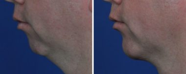 Chin Implants surgery in Annapolis Maryland