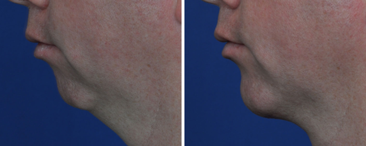 Chin Implant Annapolis MD | Chin Augmentation Severna Park