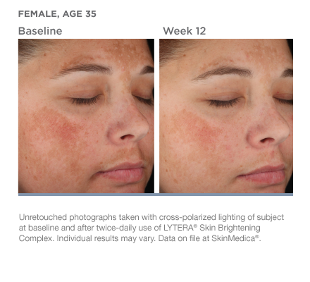 Before & After Lytera Skin Brightening Complex