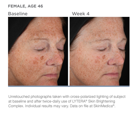 Before & After SkinMedica Brightening Complex