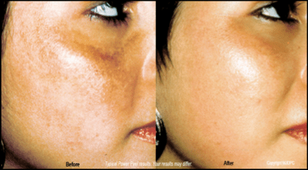 power-peel-microdermabrasion before and after