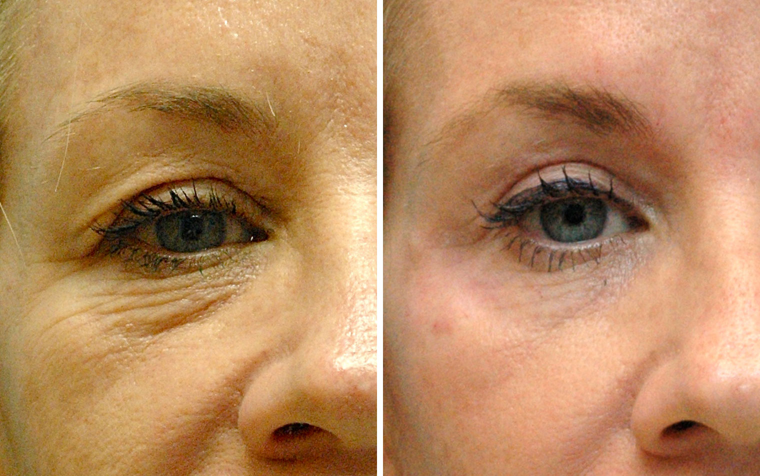 where upper and lower eyelids meet