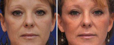 Eyelid Surgery Blepharoplasty Annapolis