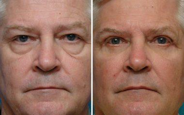 Blepharoplasty Surgical & Non Surgical Eyelid Rejuvenation