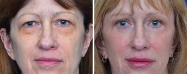 Blepharoplasty eyelid lift in Annapolis Maryland