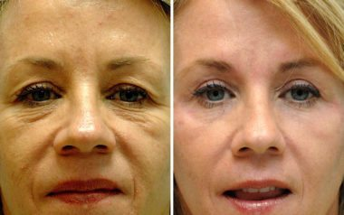 repair droopy eyelids with blepharoplasty