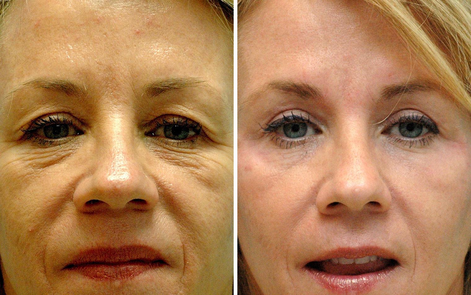 Blepharoplasty Annapolis | Eyelid Surgery | Droopy Eyelid