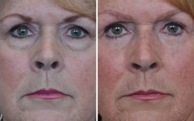 Blepharoplasty before and after in Annapolis MD