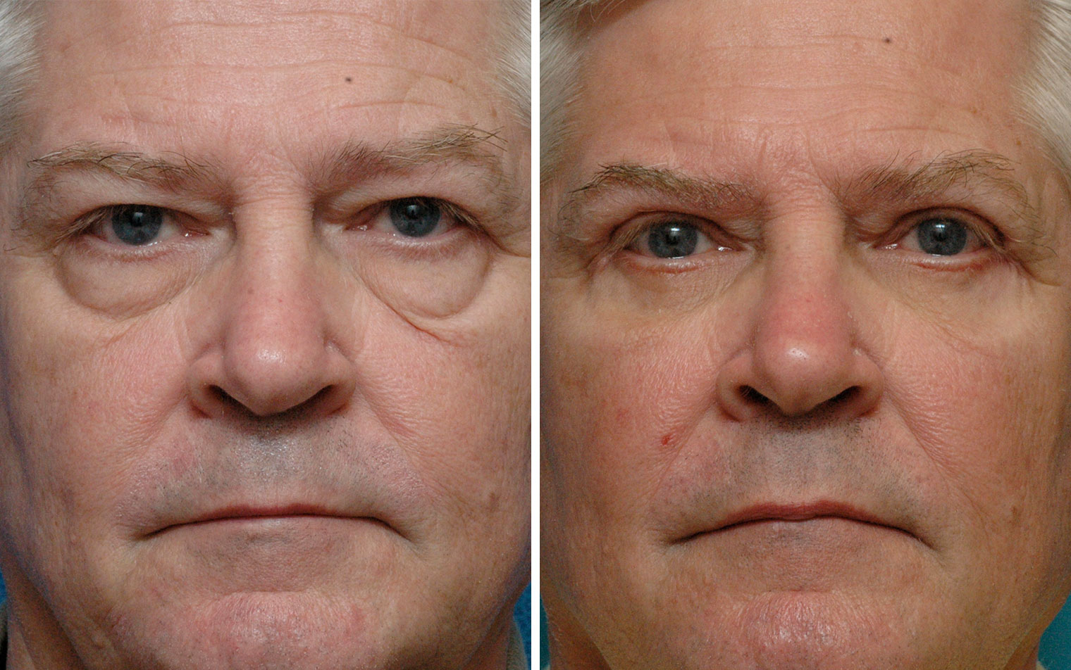 Eyelid Surgery Before & After Photos Annapolis MD
