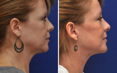 facelift before and after in Annapolis MD