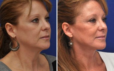 Facelift results from a Maryland cosmetic surgeon