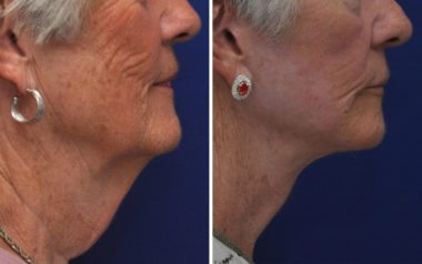 Facelift in Annapolis, MD with Dr. Chappell