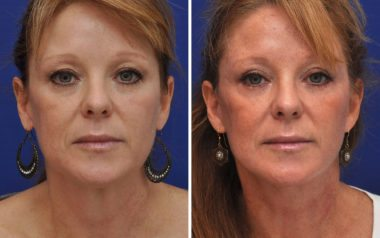 Facelift results in Maryland plastic surgery