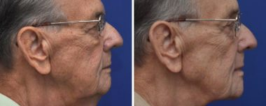 facelift with laser skin rejuvenation in Annapolis