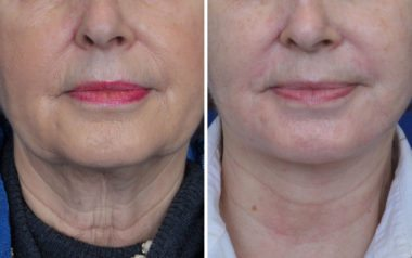 Facelift and facial cosmetic surgery in Annapolis MD